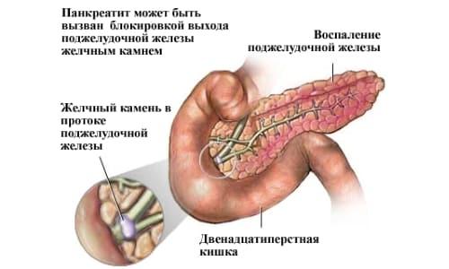 Камень в проводящих путях - частая причина панкреатита
