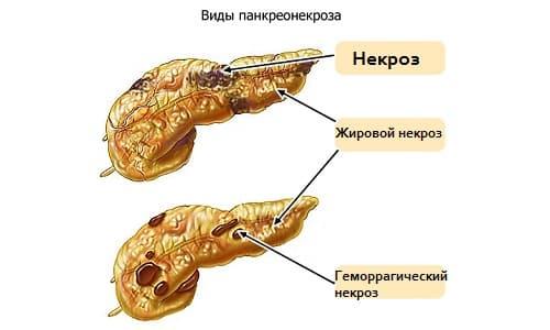 Чаще всего в организме человека развивается патпроцесс смешанного типа