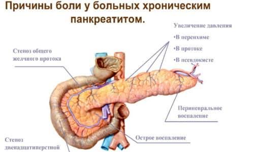 Панкреатит возникает вследствие непроходимости выводных протоков, по которым движется секрет поджелудочной
