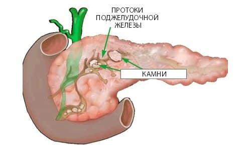 Схема панкреолитиаза