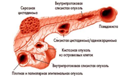 Варианты опухолей и кист поджелудочной железы