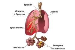Пневмония - следствие гайморита