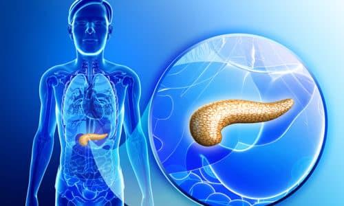 Липоматоз поджелудочной железы чаще всего называют жировой дистрофией