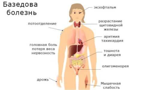 Проявления базедовой болезни
