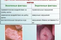 Причины возникновения лейкоплакии шейки матки
