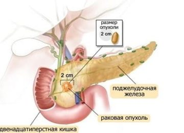 Новый взгляд на проявление и симптомы рака поджелудочной железы