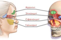 Виды и формы риносинусита