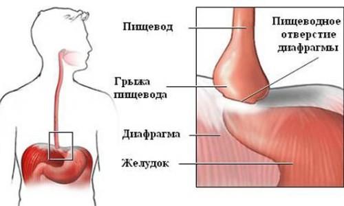 Схематическое изображение ревматоидного полиартрита