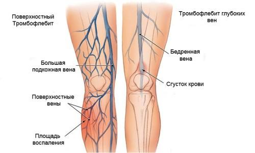Тромбофлебит поверхностных вен локализуется чаще всего в верхней трети голени и нижней трети бедра