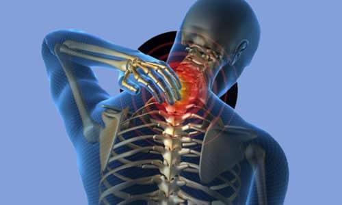 Грыжа шейного отдела позвоночника является частой причиной болей в шее