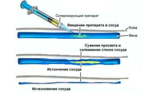 Схема проведения склеротерапии