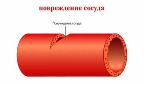Осложнение в виде кровотечения развивается из-за повреждения крупных сосудов в ходе операции