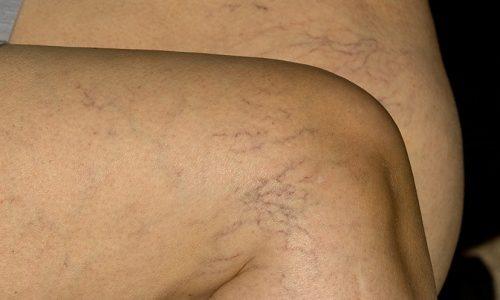 На начальной стадии компенсации визуально заметно усиление сосудистого рисунка мелких венок