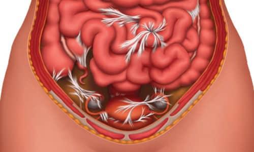 На фоне ущемления органов, попавших в грыжевой мешок, развивается спаечная болезнь