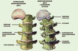 Сравнение здоровых и больных шейных позвонков