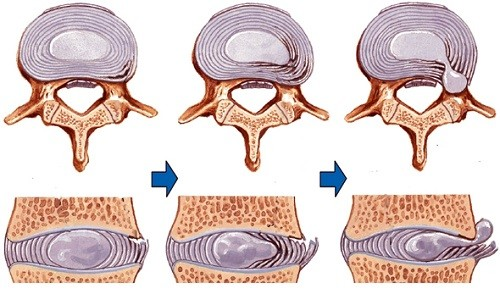 Стадии развития межпозвоночной грыжи