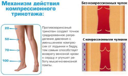 Действие, которое производит лечебное белье, заключается в давлении разной интенсивности на различные зоны ног