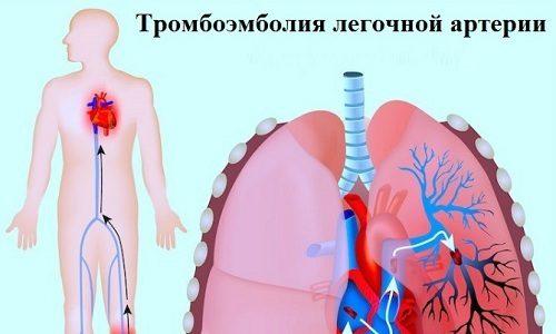 В запущенной форме тромбофлебит приведет к возникновению тромбоэмболии, которая сопровождается отрывом тромба