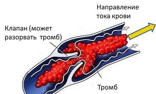 Тромбофлебит острый — это один из видов тромбоза, который проявляется закупоркой кровеносных сосудов