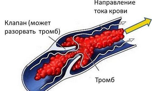 Из-за отсутствия подвижности в период восстановления могут появиться венозные тромбозы