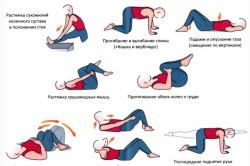 Физические упражнения при грыже в поясничном отделе