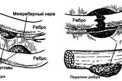Схема ушиба и перелома ребра