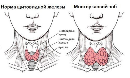 Схема многоузлового зоба щитовидной железы