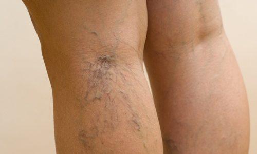 Варикозное расширение вен — болезнь, которая носит хронический характер. В основном она поражает мелкие сосуды, которые располагаются на нижних конечностях