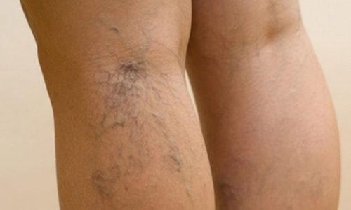 При варикозе слабеют соединительные ткани основы стенок вен