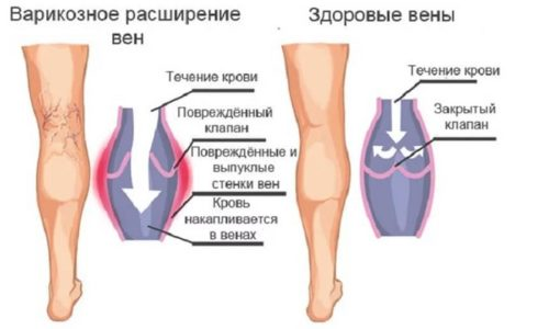 Варикозное расширение вен часто напоминает сплетение или сцепление выступивших на поверхности кожи глубоких вен