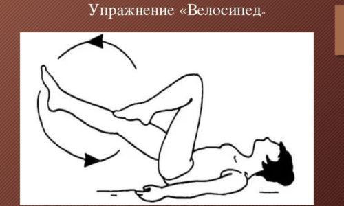 Лежа на спине, совершать ногами «педальные» движения, какие обыкновенно совершаются, когда человек едет на велосипеде. Спину и поясницу при проделывании такой лечебной физической процедуры отрывать от пола не рекомендуется