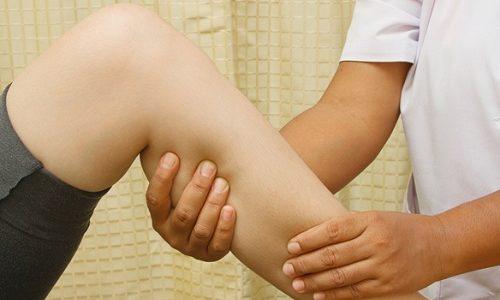 Хроническая венозная недостаточность — это комплекс симптомов, развивающихся в результате нарушения работы клапанного аппарата нижних конечностей