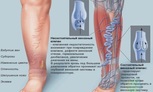 Любые функциональные нарушения клапанного аппарата, обеспечивающего правильный кровоток, приводят к проблемам