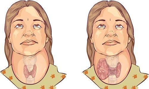 Появление локальных уплотнений в щитовидке при прогрессировании узлового зоба усиливает функциональную активность клеток железистой ткани органа