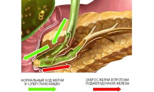 Реактивный панкреатит вызывается быстрой закупоркой или частичным сужением протока поджелудочной железы