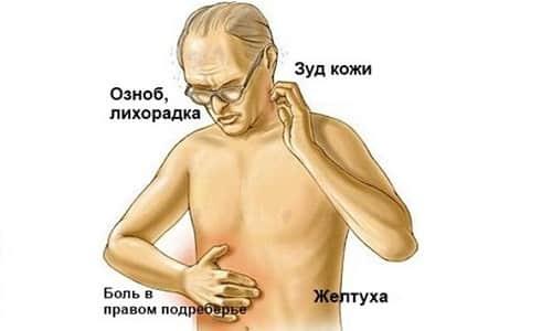 Возникновение желтухи связано с прорастанием опухоли в проток, застоем желчи в желчевыводящей системе и метастазами в лимфатических узлах