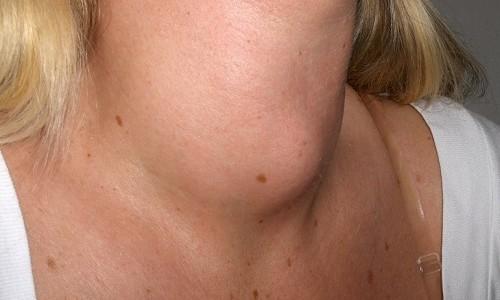 Тиреоидит щитовидной железы представляет собой комплекс воспалительных процессов с похожей клинической картиной заболевания