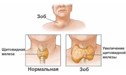 Визуально диффузные изменения щитовидки выражаются как равномерное увеличение размеров органа пропорционально во всех направлениях и плоскостях