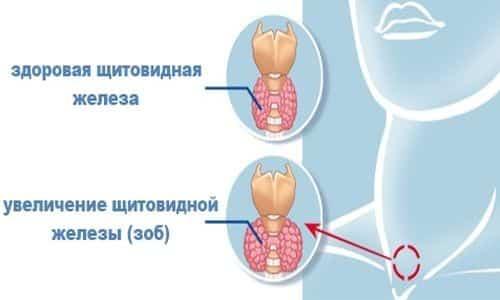 Консистенция железы может варьироваться от мягкой до умеренно плотной